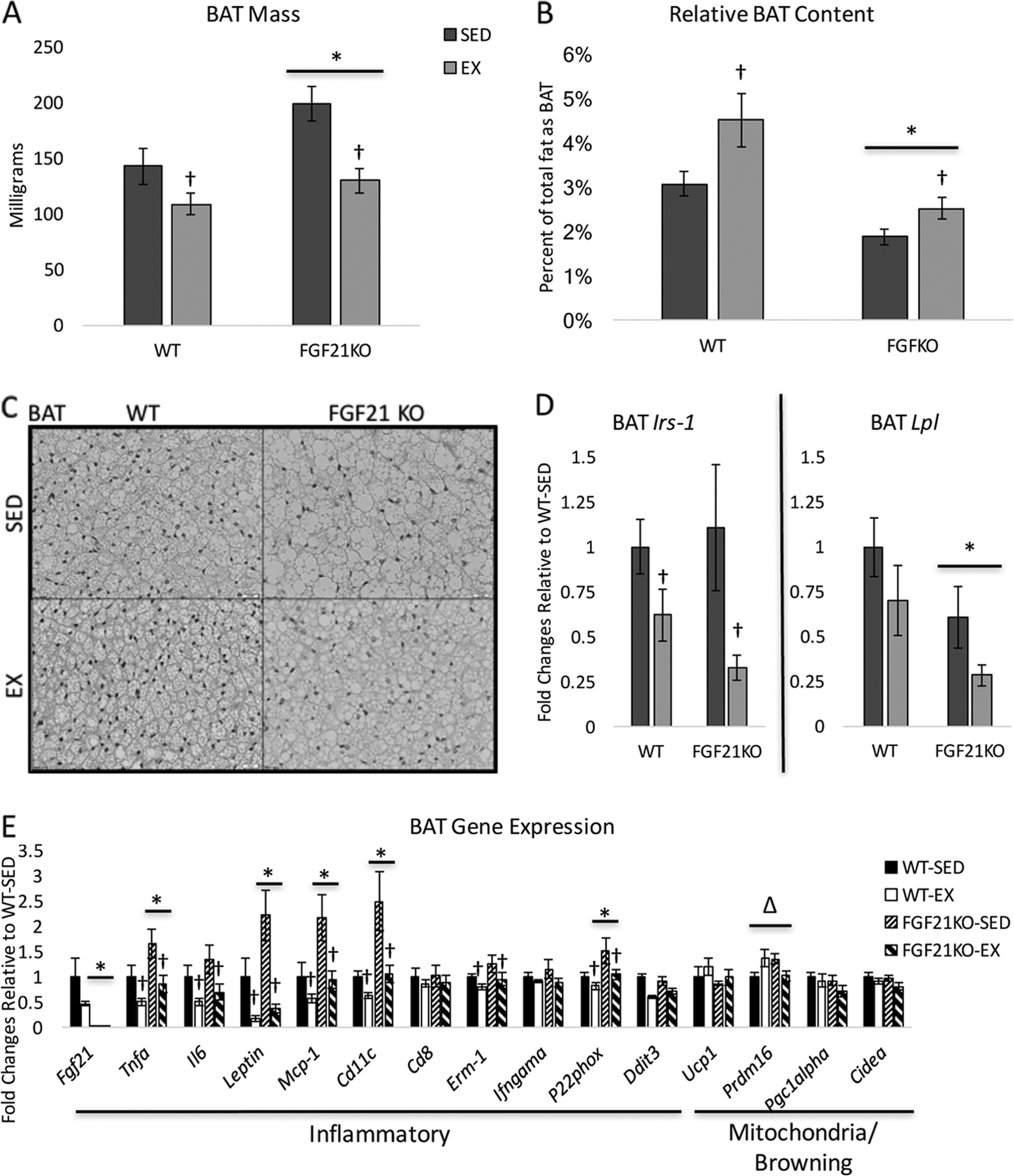 Anti-inflammatory effects of exercise training in adipose