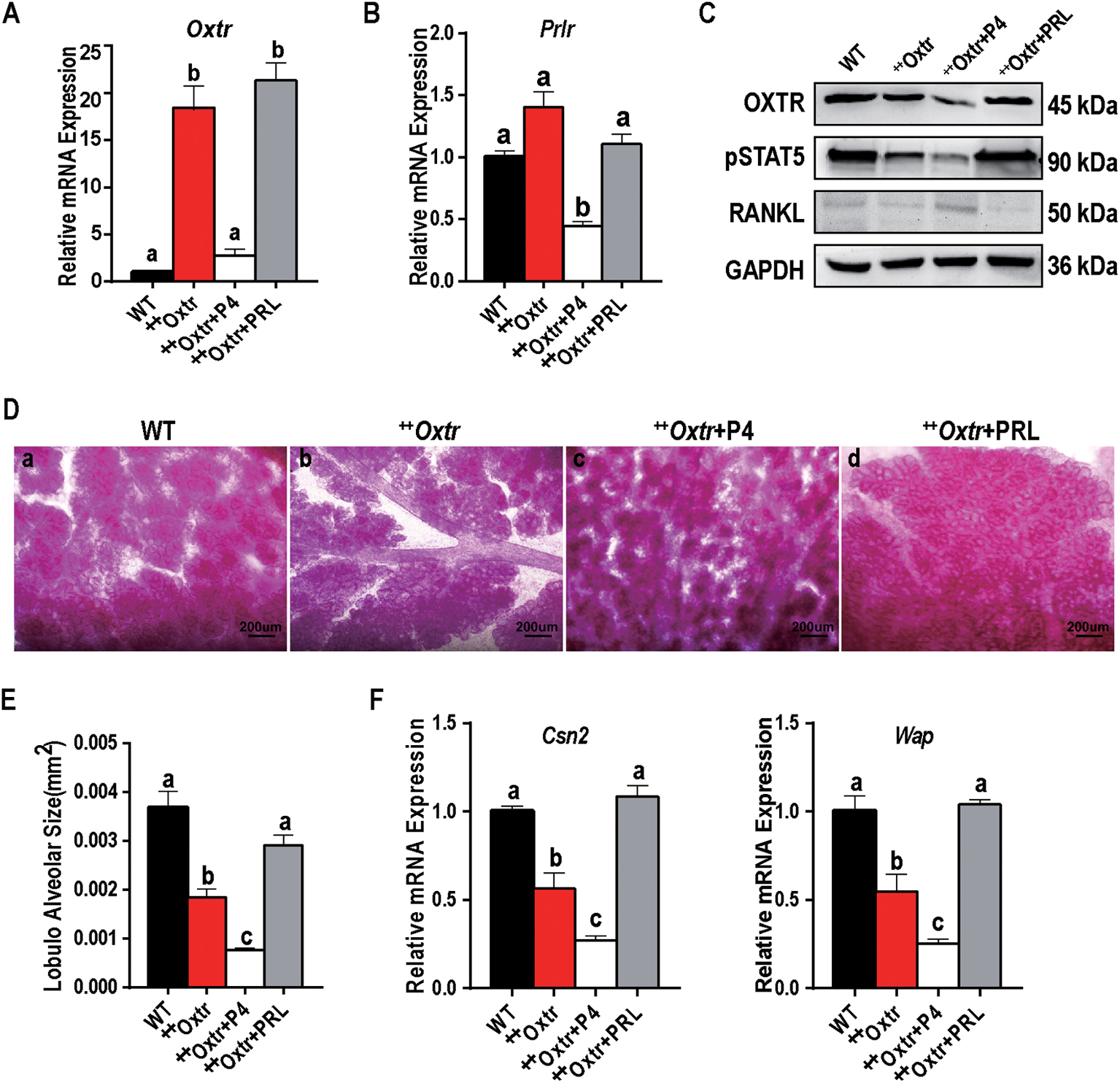 OXTR overexpression leads to abnormal mammary gland development in
