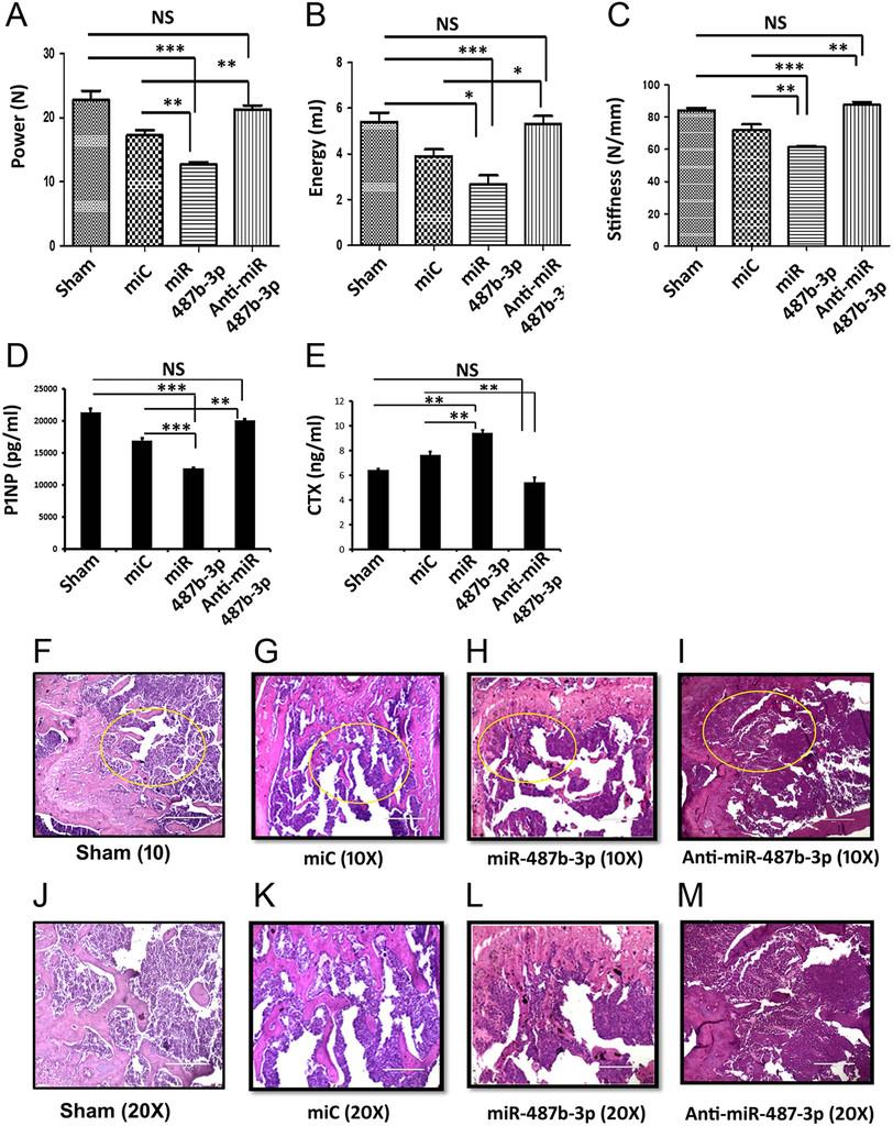miR-487b-3p impairs osteoblastogenesis by targeting Notch-regulated
