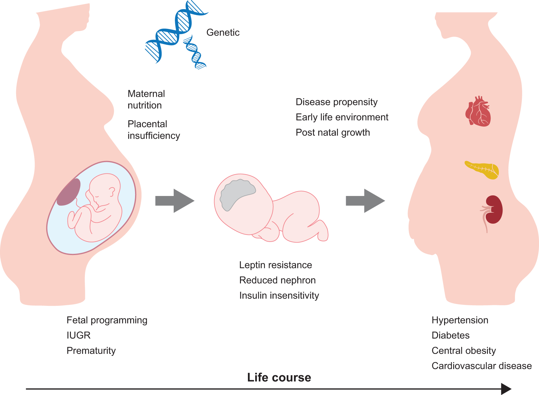 Risk of hypertension following perinatal adversity: IUGR and