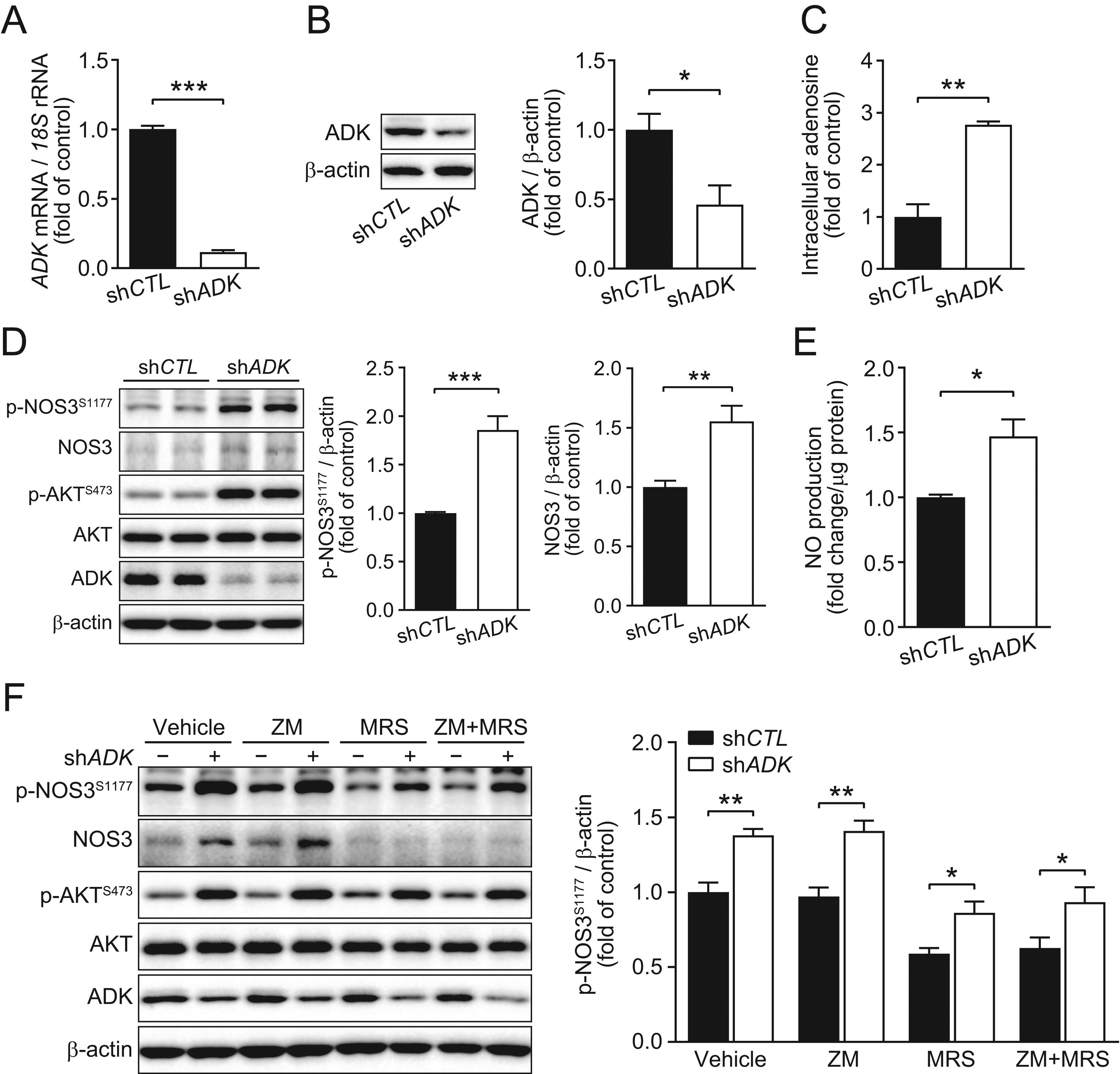 Endothelial adenosine kinase deficiency ameliorates diet