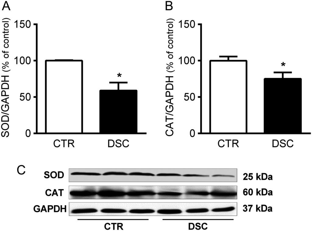 Forced internal desynchrony induces cardiometabolic